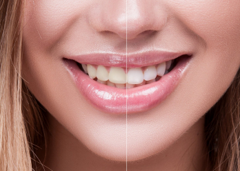 Teeth whitening at home vs. professional teeth whitening at arana hills